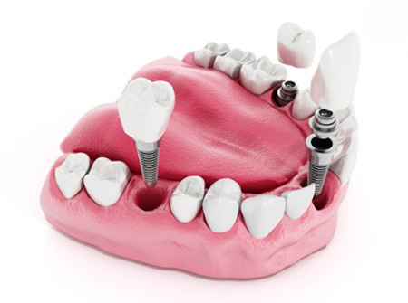 dentures implants faq